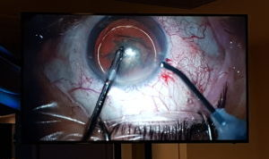 eye-surgery-marbella