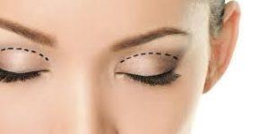 eyelid-surgery-marbella